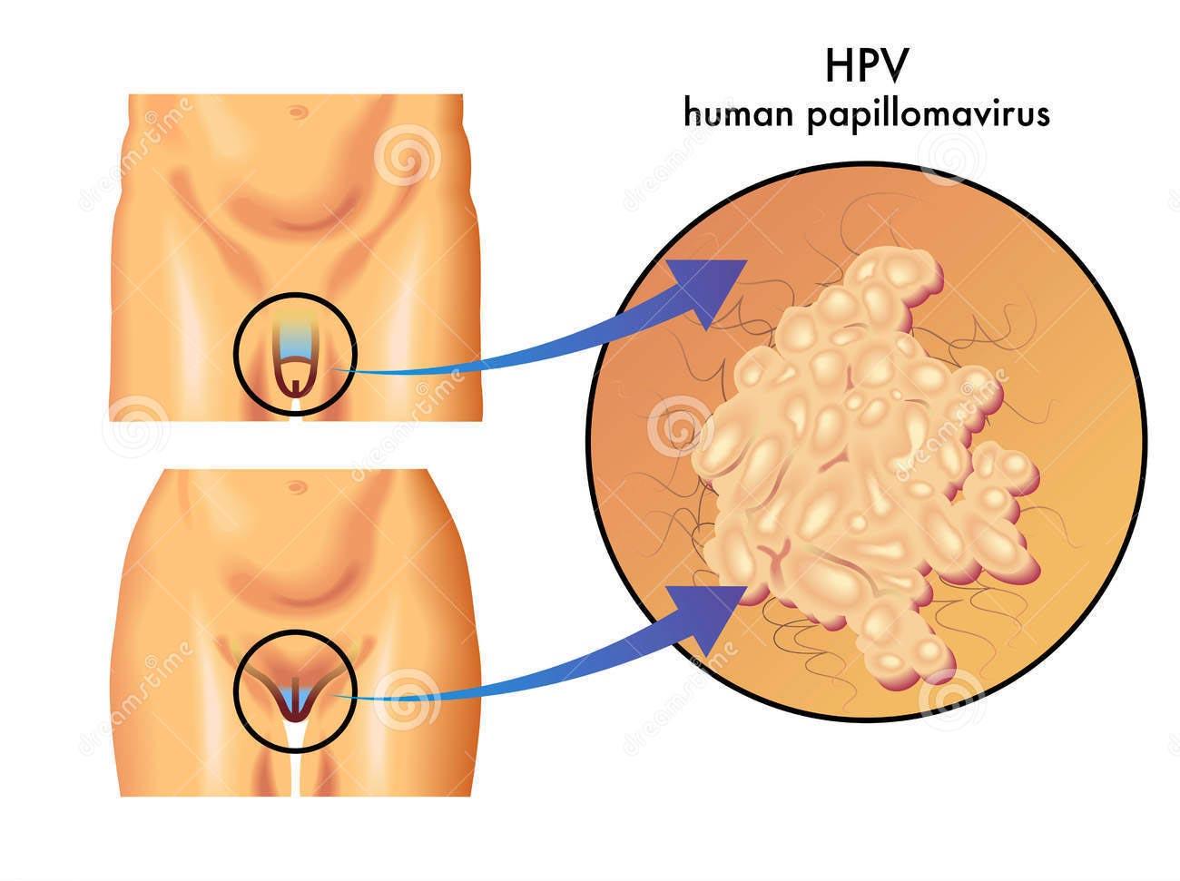 Papilloma virus vaccino uomini