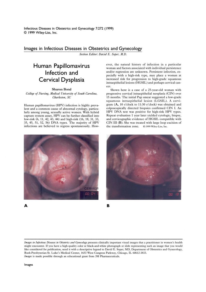 hpv throat dysplasia