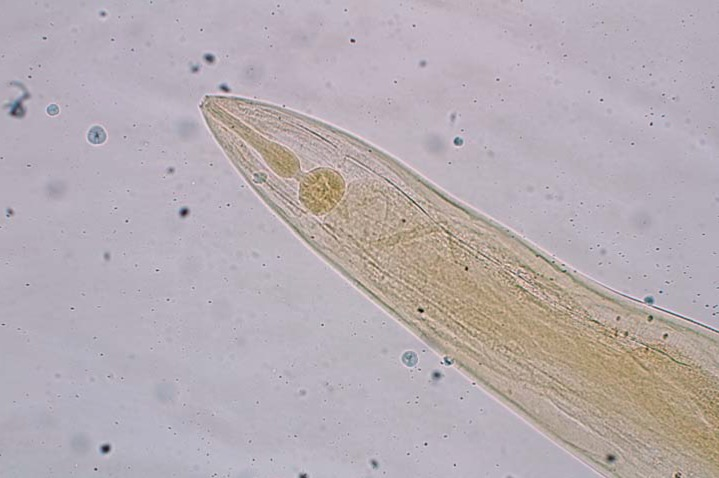 enterobius vermicularis egg treatment papilloma in nostril
