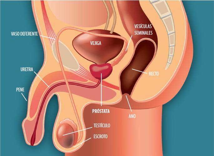 vestibular papillomatosis histopathology human papillomavirus and neoplasia