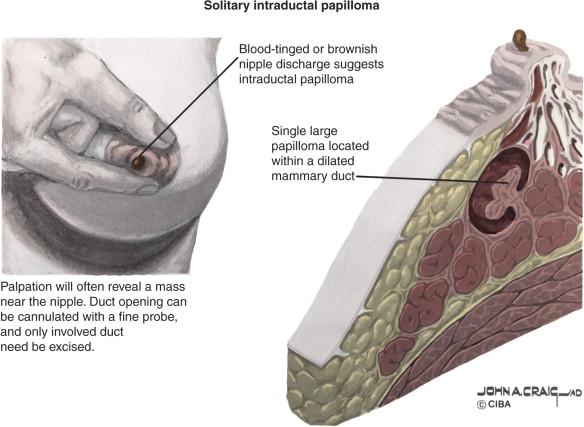 are intraductal papillomas cancerous tratamentul paraziților giardia