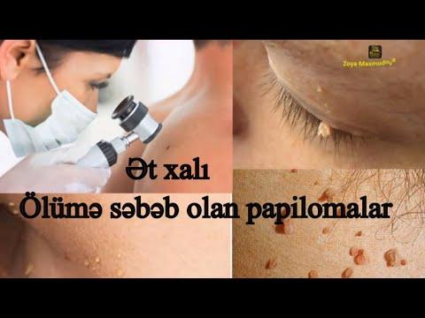 arzător de negi hpv tumor rachen