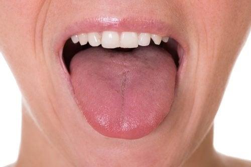 papilom al limbii