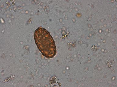 medicamente pentru paraziți protozoici tratamentul paraziților papiloma