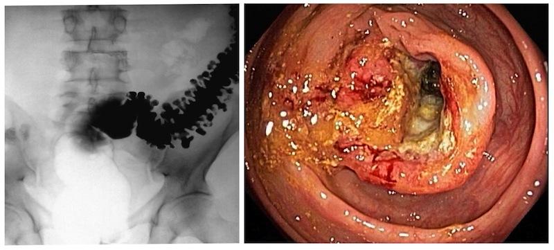 enterobius vermicularis larva bandă cu margele