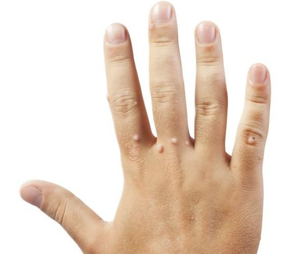 de ce apar verucile pe mâini