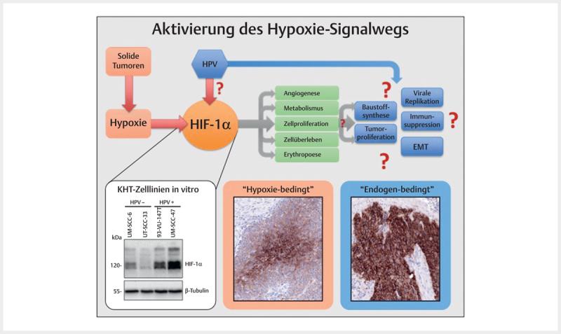 hpv assoziierter tumor