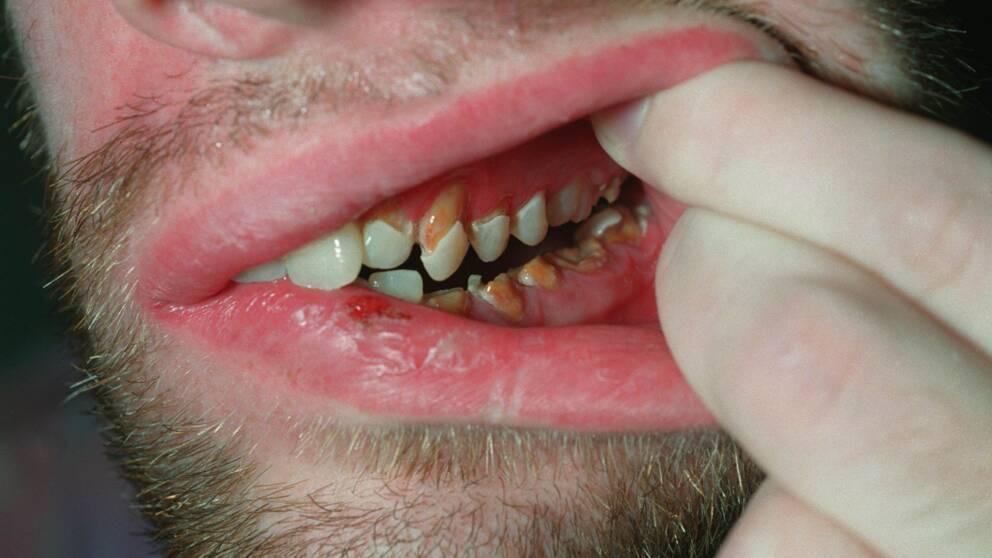 tratamentul limbii condilomului