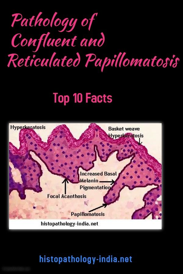 confluent and reticulated papillomatosis pathology