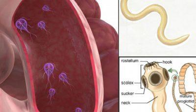 simptome de giardie și helminți