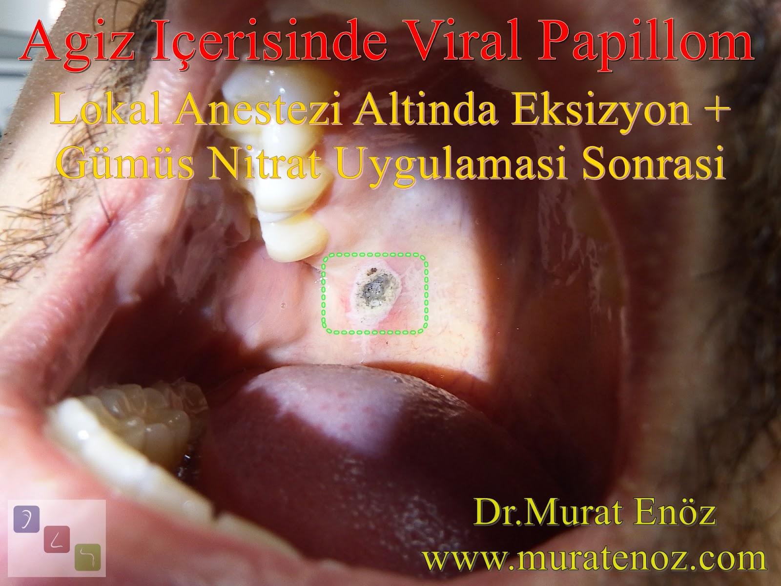 Papilloma nose treatment - csrb.ro, Papilloma sinus cancer