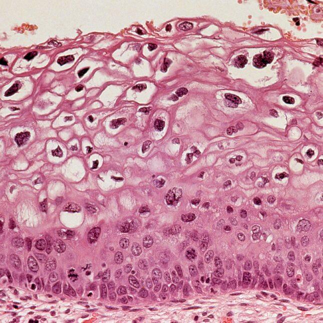 Hpv virus eliminate from body, Papiloma humano en el ano hombres