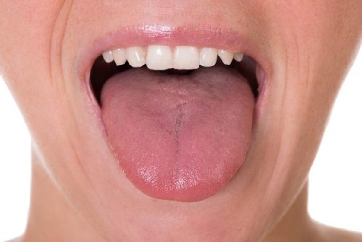Hpv langue symptome. Hpv langue symptome