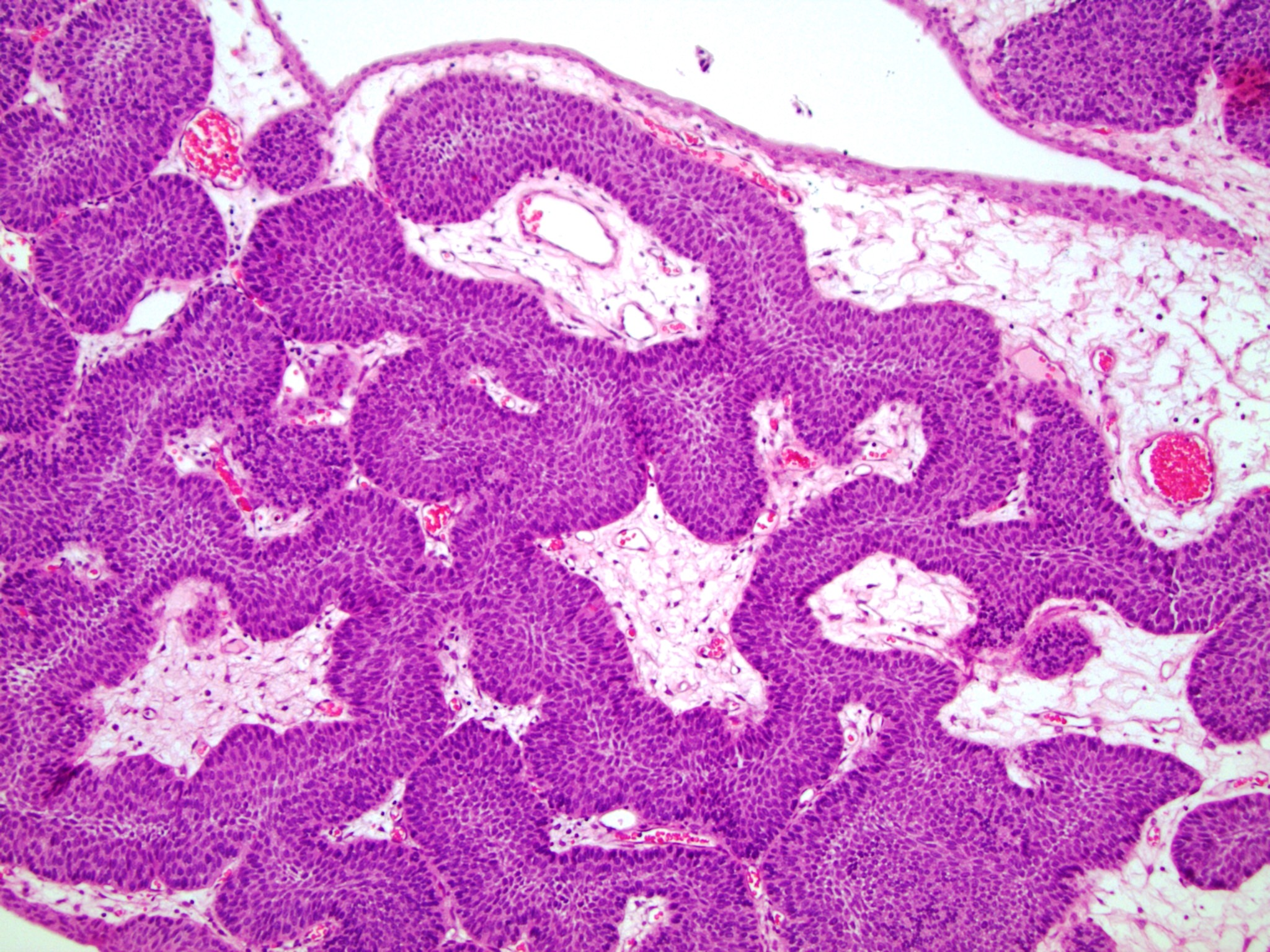 Bladder papilloma pathology outlines, - Bladder papillomatosis