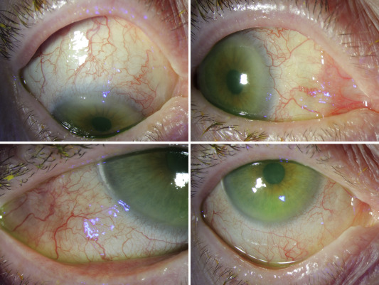 conjunctival squamous papilloma treatment