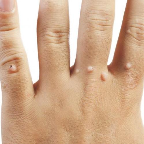 cum se vindecă rănile din negii genitali