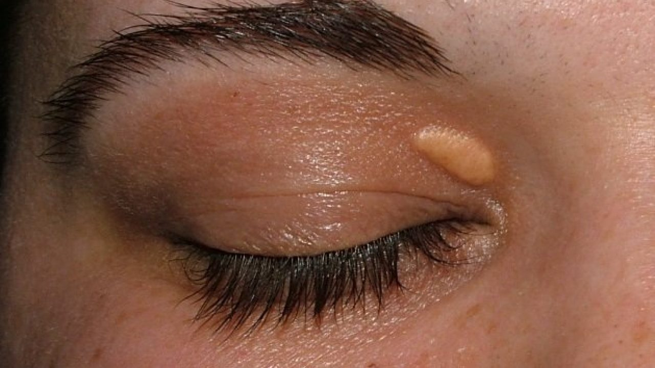 papilom deasupra ochiului