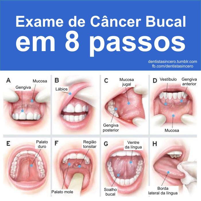 Papilloma cancer de garganta Papiloma humano cancer de garganta - csrb.ro