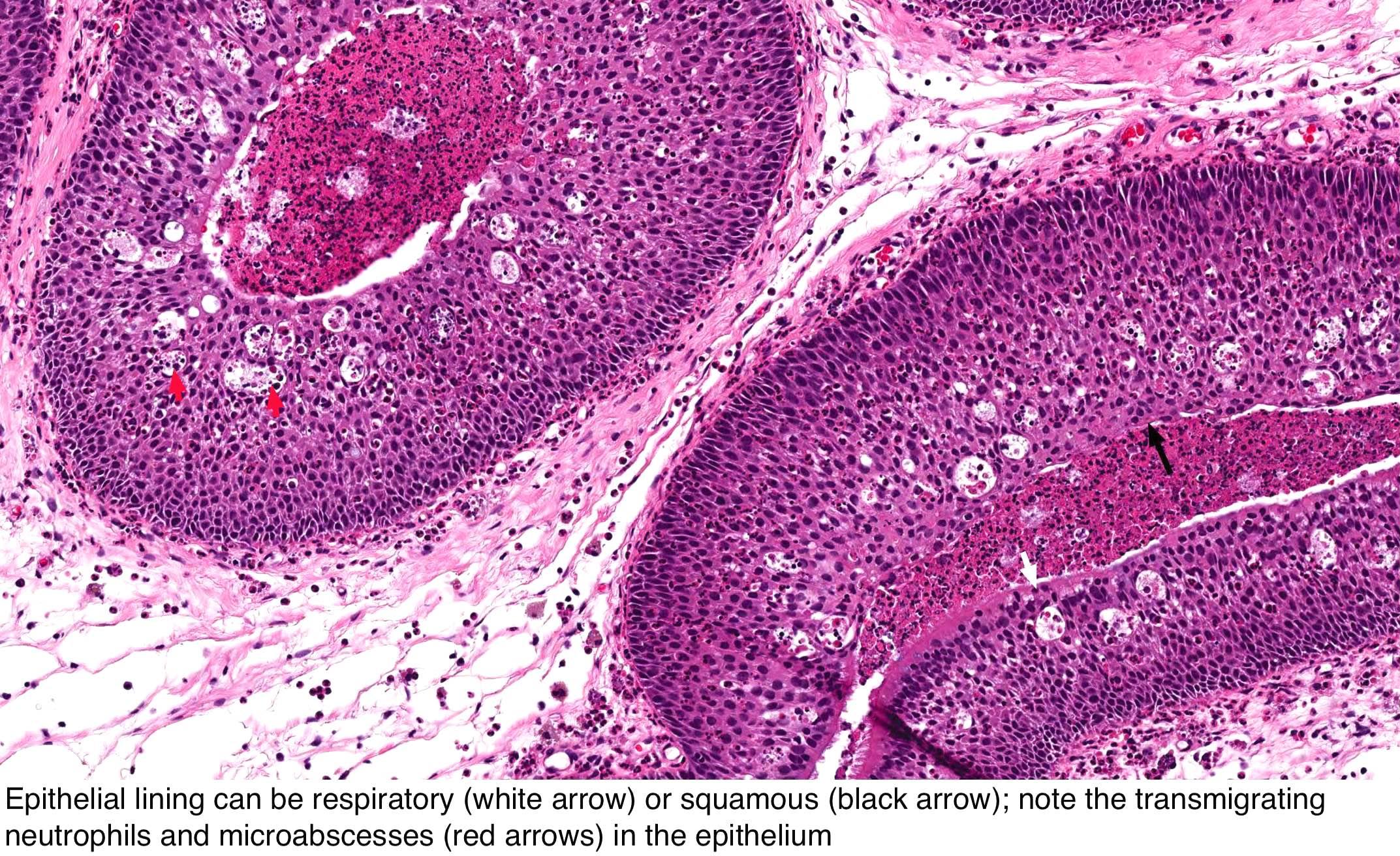Causes for nasal papilloma, Nasal papilloma causes