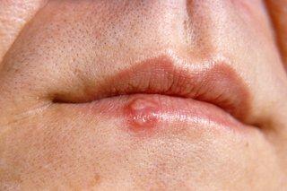 hpv mouth cold sores remedii de viermi viermi