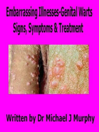 Papillomavirus grande fatigue, Hpv femme symptomes