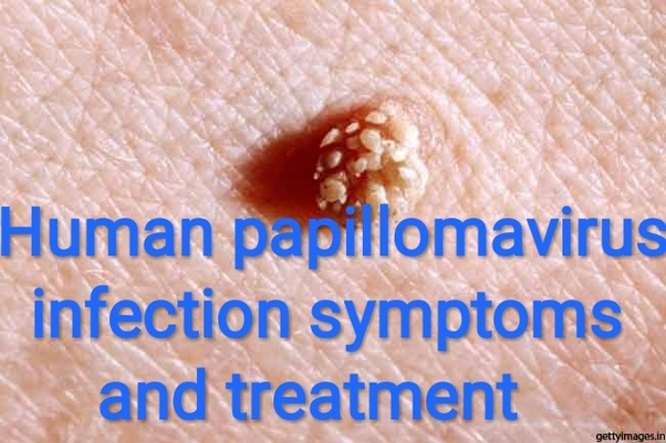 How to remove warts and papilloma - csrb.ro