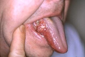 Cancerul bucal - csrb.ro