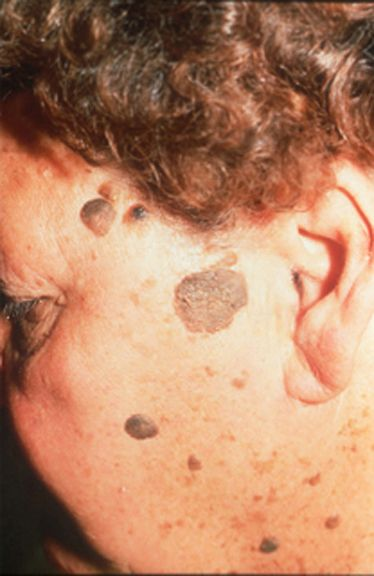 warts on older skin