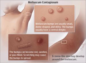 Wart pox virus DermTV - Molluscum Contagiosum [csrb.ro Epi #] papilloma dorso lingua