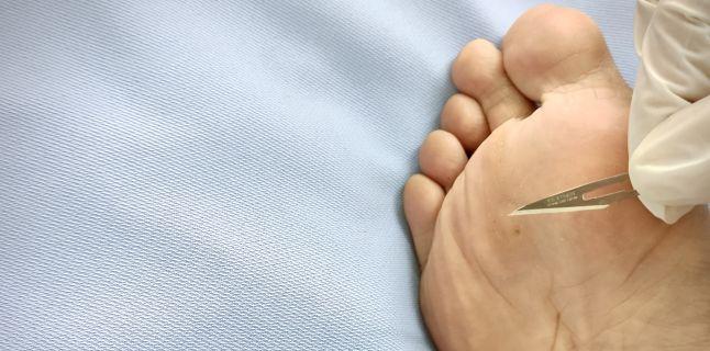 tratamentul papilomului pe picior