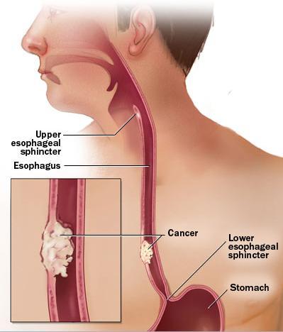 Oxiuros apendicitis, Oxiuros definicion medica. Rastreo Biomagnetismo Completo