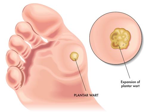 Arizona hidroterapie de colon detox spa. Cum de a alege dreptul de Detox Spa