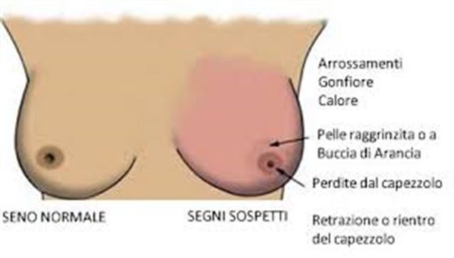 nodulo papilloma al seno lo pasta de vierme ar