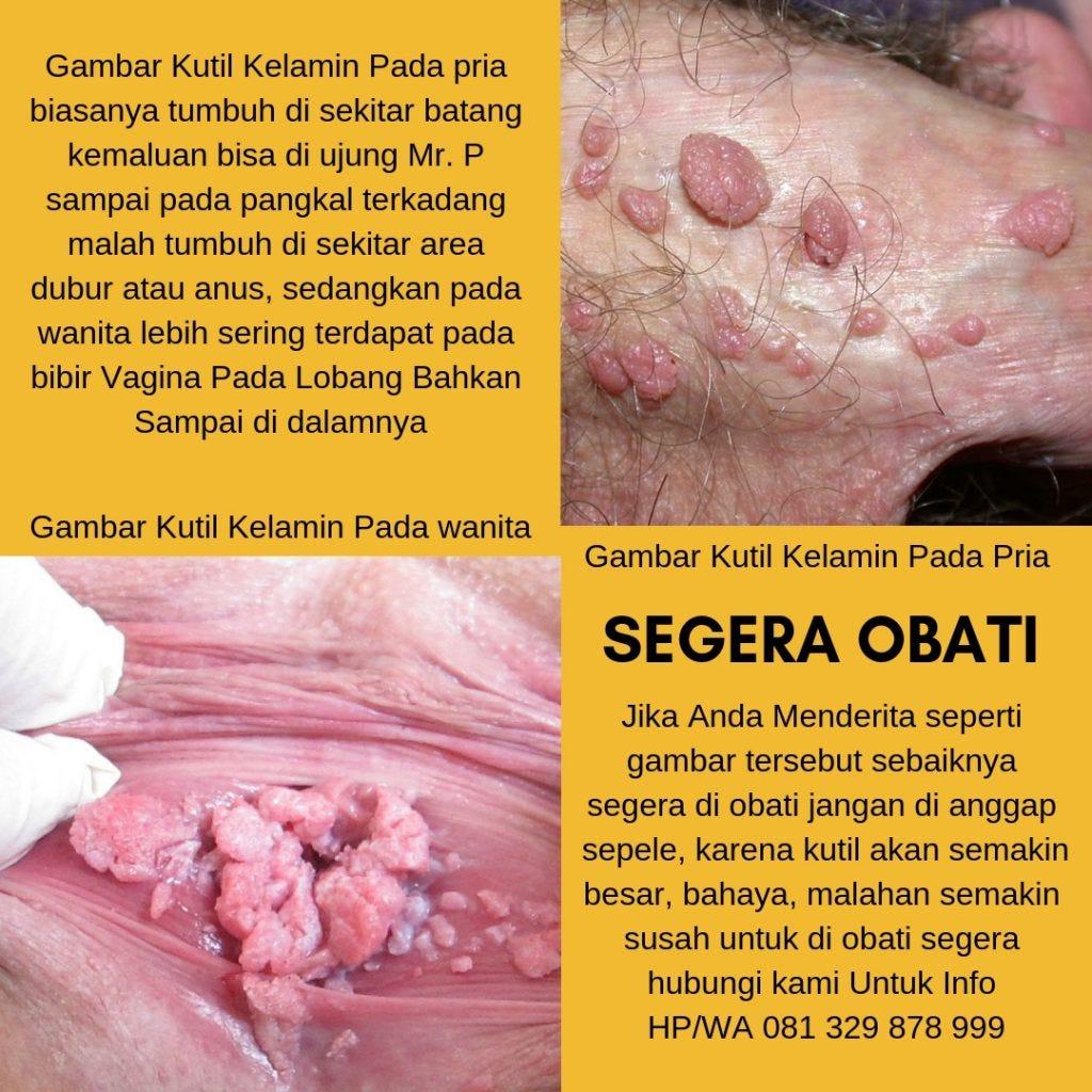 papiloma genital tratament