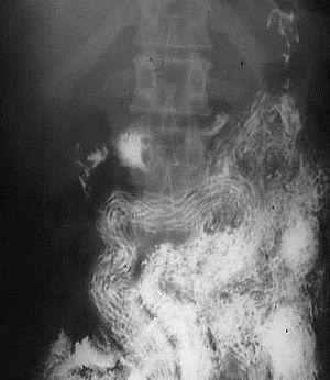 giardioză de sfeclă
