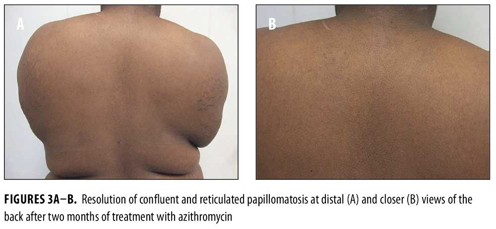 Confluent and reticulated papillomatosis treatment - REVIEW-URI