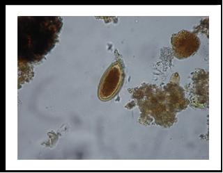 Enterobius vermicularis ovo, Recent Posts