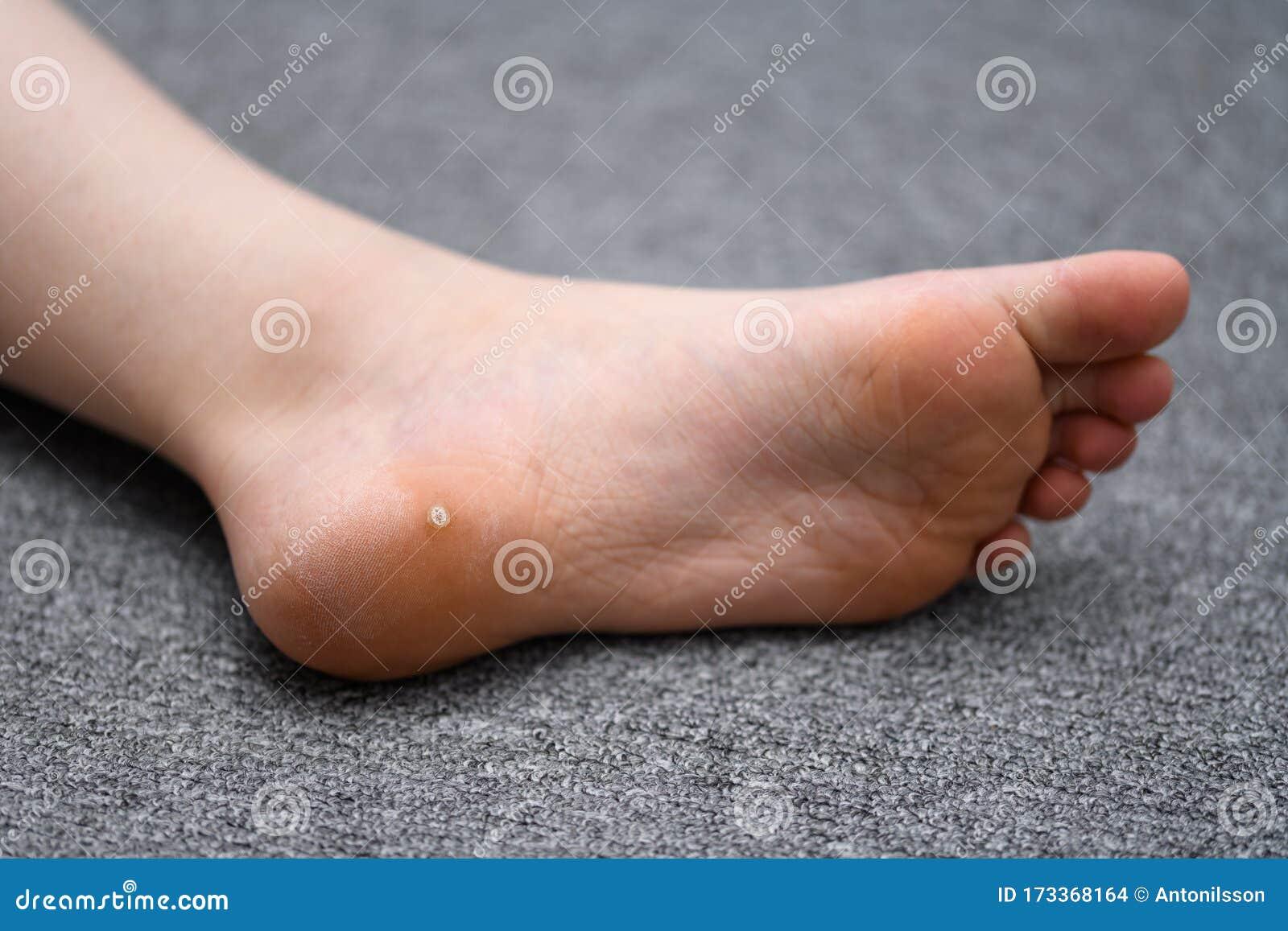 papilloma on child s foot ce sunt condiloamele și papiloamele