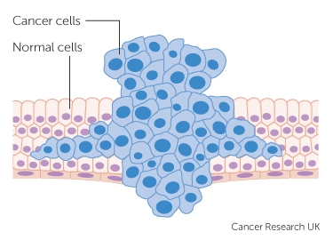 cancer benign tumour