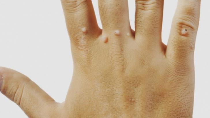 tratamentul papilomului degetelor