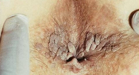 colier papular și negi genitale cura pt ficat gras