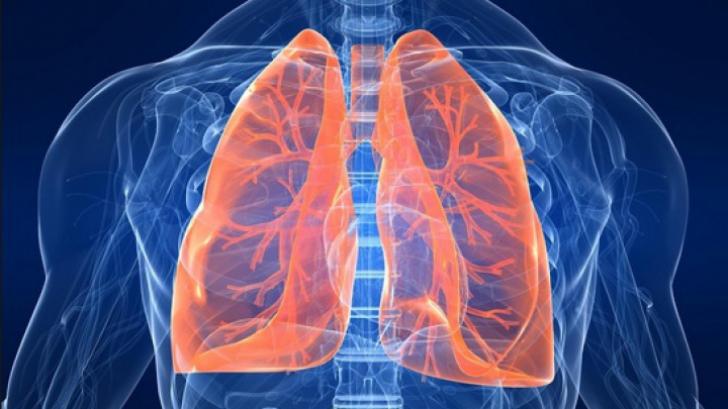 Cancerul pulmonar: cel mai mortal tip de cancer din lume | csrb.ro