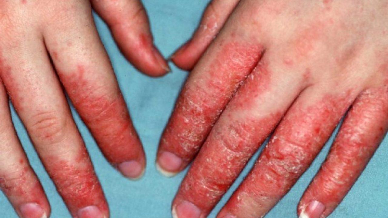 dermatite da contatto phylum platyhelminthes grafic vierme