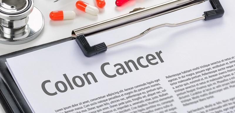 Cancer colorectal esperance de vie