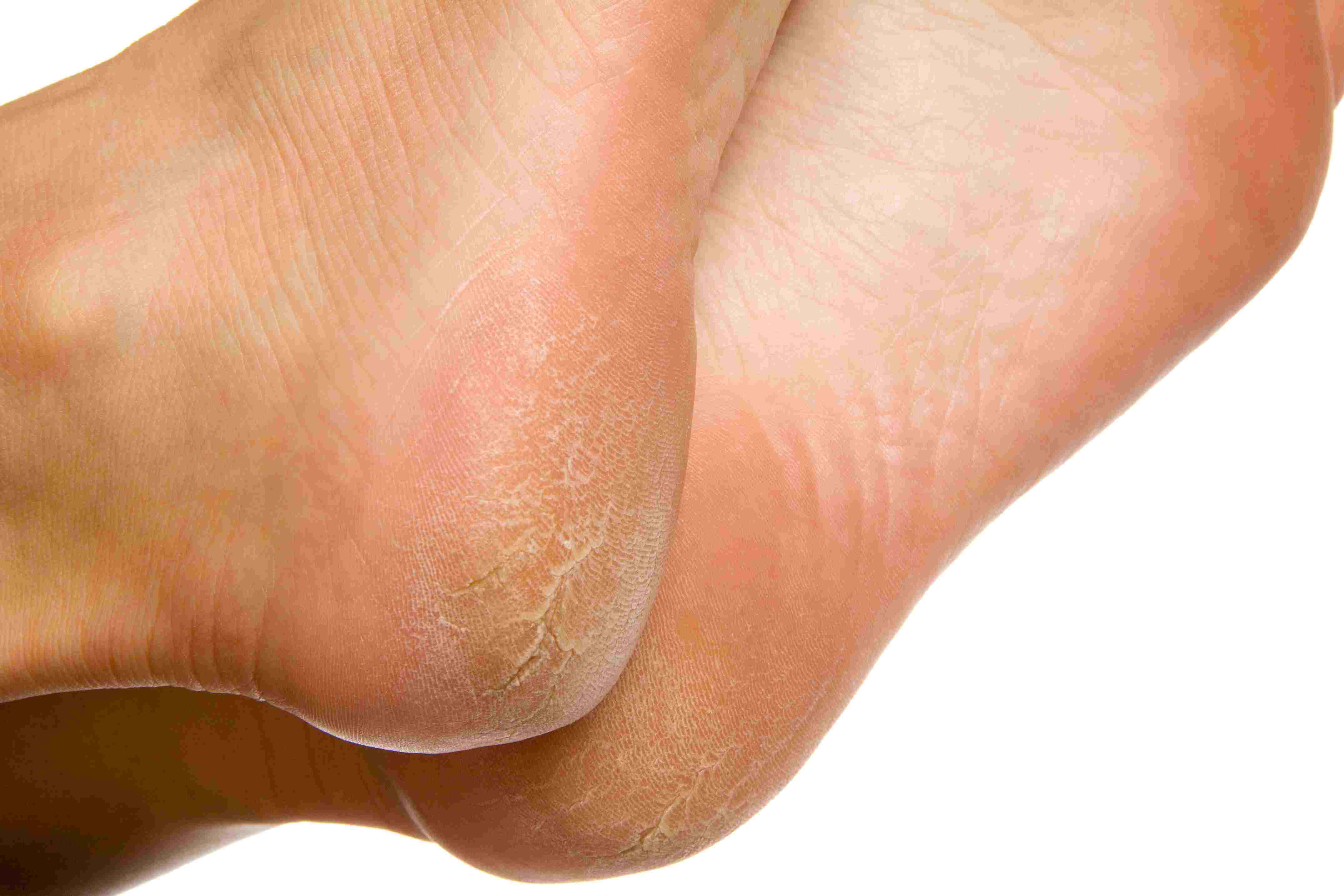 HPV o necunoscuta? - Hpv that causes warts on feet