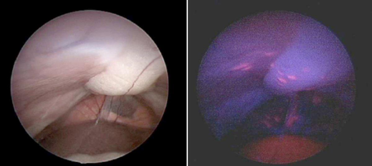 peritoneal cancer remission tratamentul cauzei condiloamelor