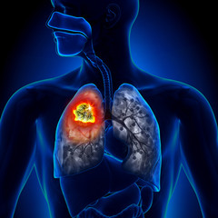 cancerul la plamani doare