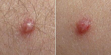 Infezione da papilloma virus sintomi, Lesioni da papilloma virus
