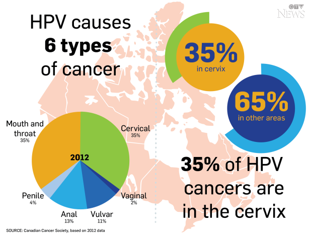 How is hpv cancer caused - Hpv virus causes cancer