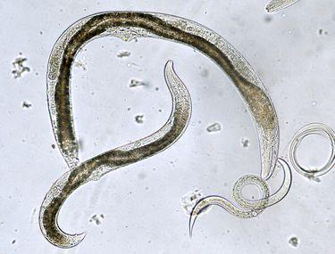 tratamentul și prevenirea nematodelor cum să elimini viermii la copii mici